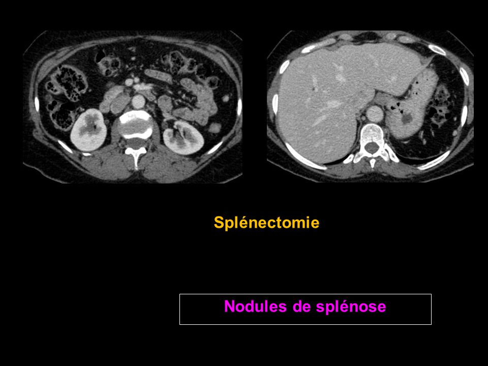 Splénectomie Nodules de splénose
