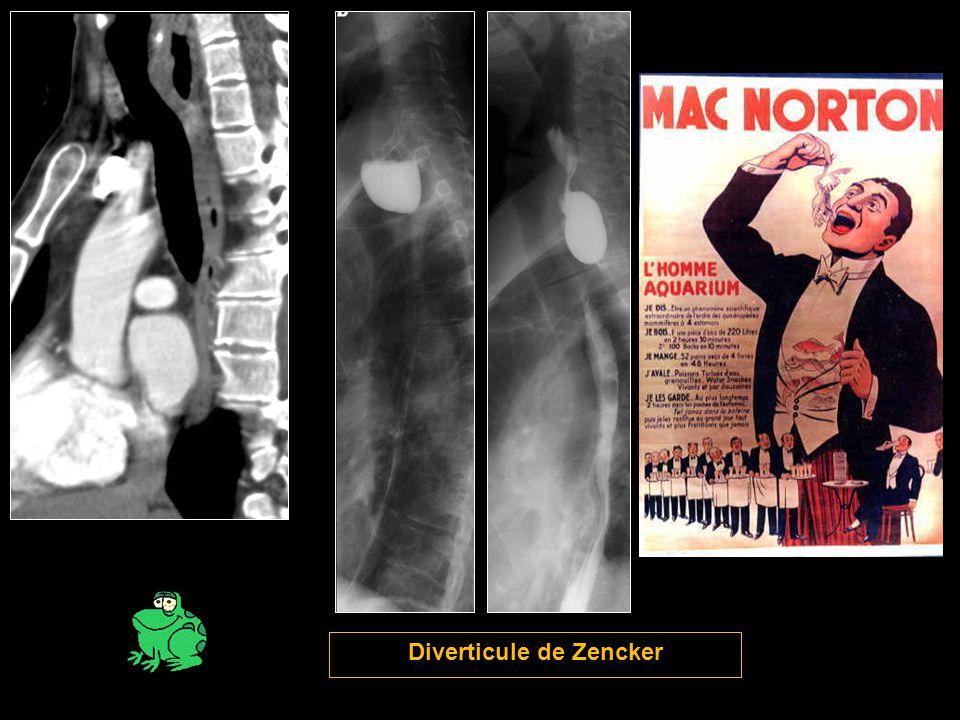 Diverticule de Zencker