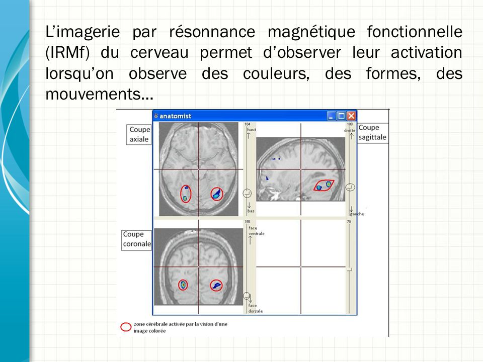 L'imagerie par résonnance magnétique fonctionnelle (IRMf) du cerveau permet d'observer leur activation lorsqu'on observe des couleurs, des formes, des mouvements…