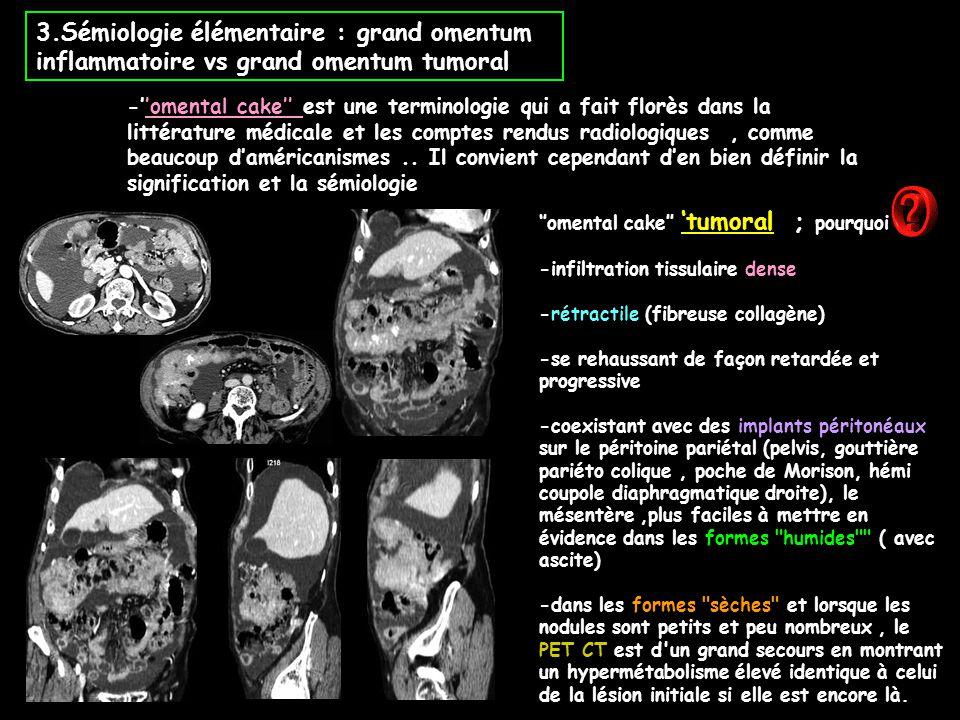 3.Sémiologie élémentaire : grand omentum inflammatoire vs grand omentum tumoral