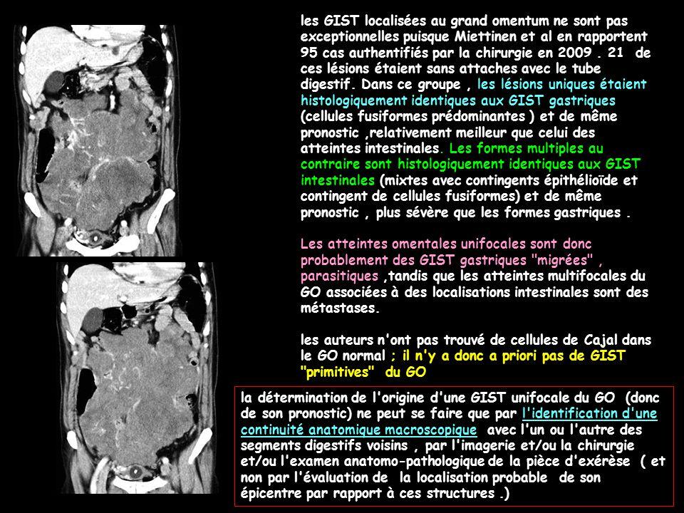 les GIST localisées au grand omentum ne sont pas exceptionnelles puisque Miettinen et al en rapportent 95 cas authentifiés par la chirurgie en 2009 . 21 de ces lésions étaient sans attaches avec le tube digestif. Dans ce groupe , les lésions uniques étaient histologiquement identiques aux GIST gastriques (cellules fusiformes prédominantes ) et de même pronostic ,relativement meilleur que celui des atteintes intestinales. Les formes multiples au contraire sont histologiquement identiques aux GIST intestinales (mixtes avec contingents épithélioïde et contingent de cellules fusiformes) et de même pronostic , plus sévère que les formes gastriques .