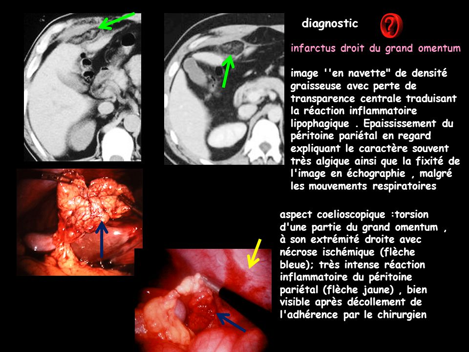 diagnostic infarctus droit du grand omentum
