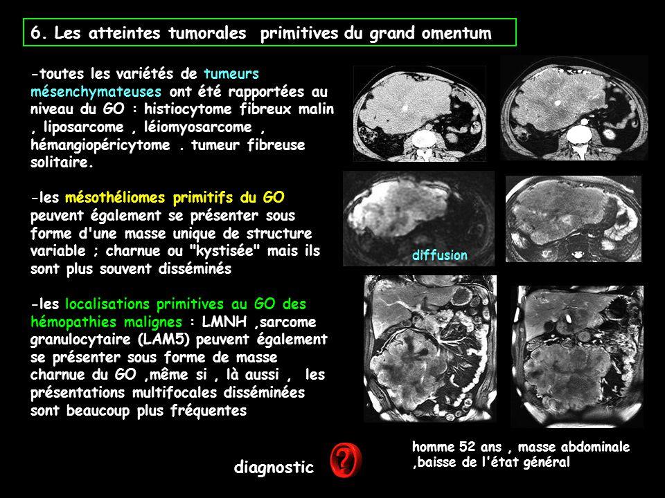 6. Les atteintes tumorales primitives du grand omentum