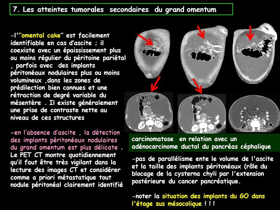 7. Les atteintes tumorales secondaires du grand omentum