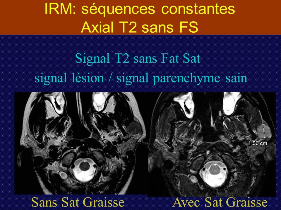 IRM: séquences constantes Axial T2 sans FS