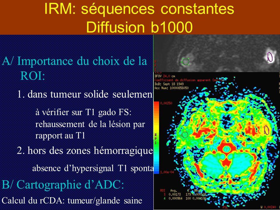 IRM: séquences constantes Diffusion b1000