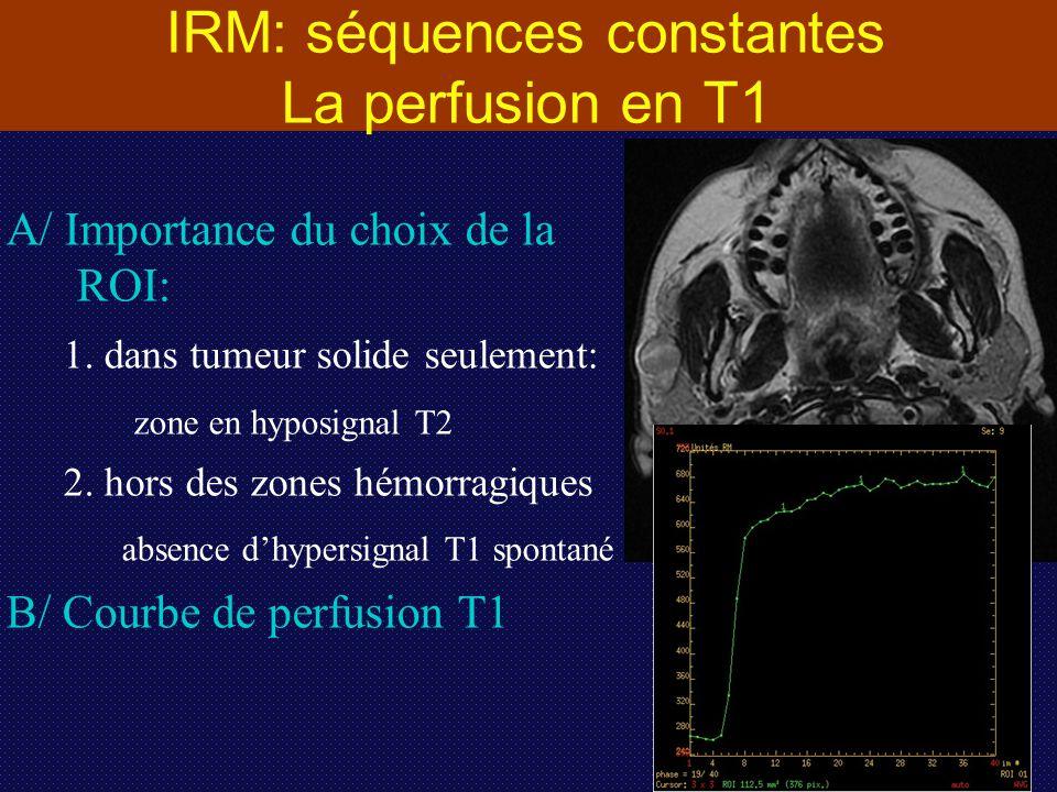 IRM: séquences constantes La perfusion en T1