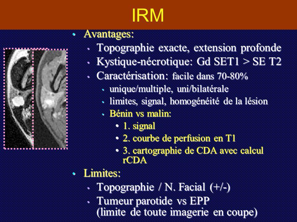 IRM Avantages: Topographie exacte, extension profonde