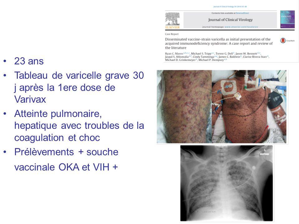 23 ans Tableau de varicelle grave 30 j après la 1ere dose de Varivax. Atteinte pulmonaire, hepatique avec troubles de la coagulation et choc.