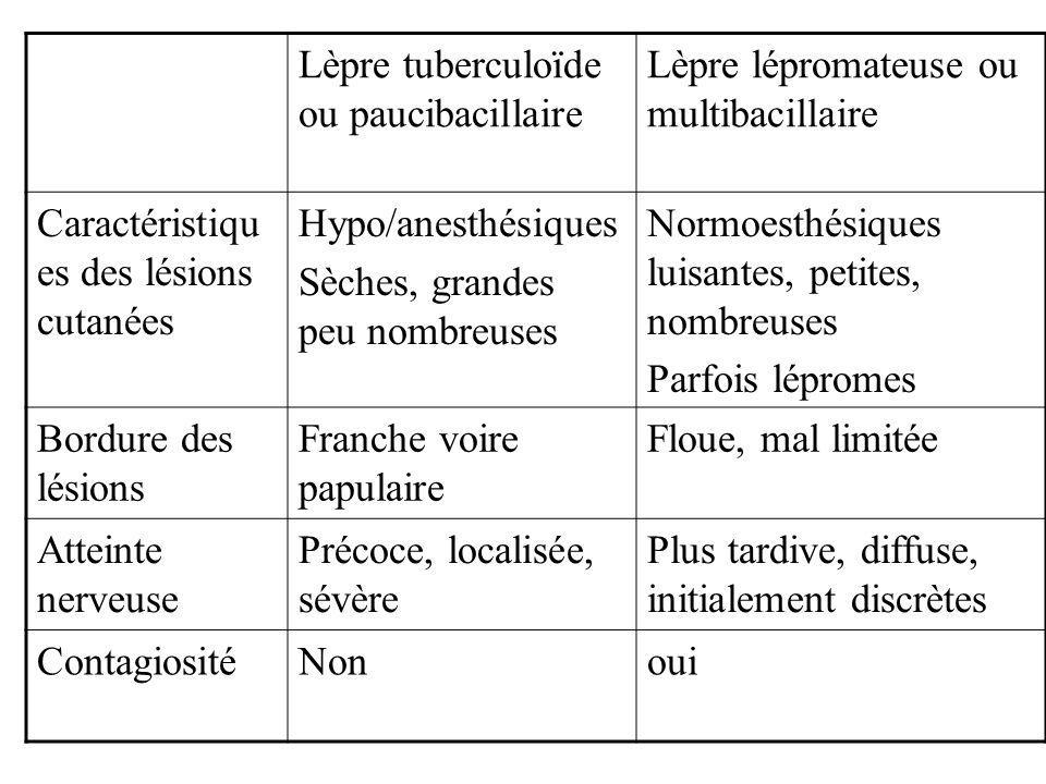 Lèpre tuberculoïde ou paucibacillaire