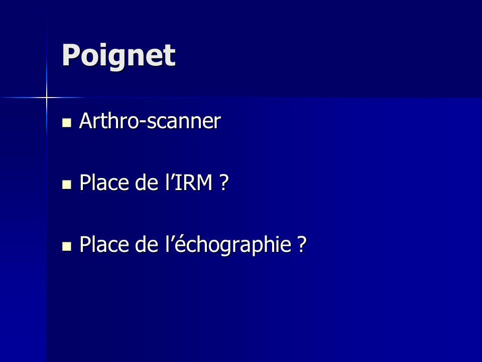 Poignet Arthro-scanner Place de l'IRM Place de l'échographie
