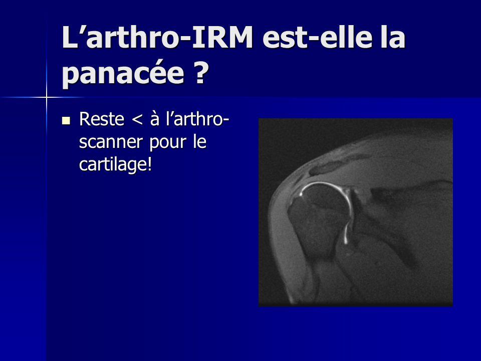 L'arthro-IRM est-elle la panacée
