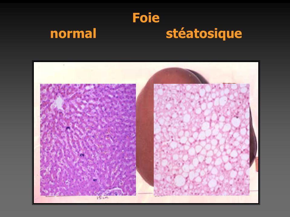 Foie normal stéatosique