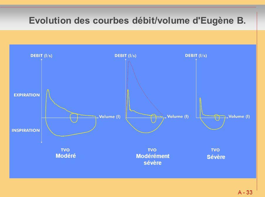 Evolution des courbes débit/volume d Eugène B.