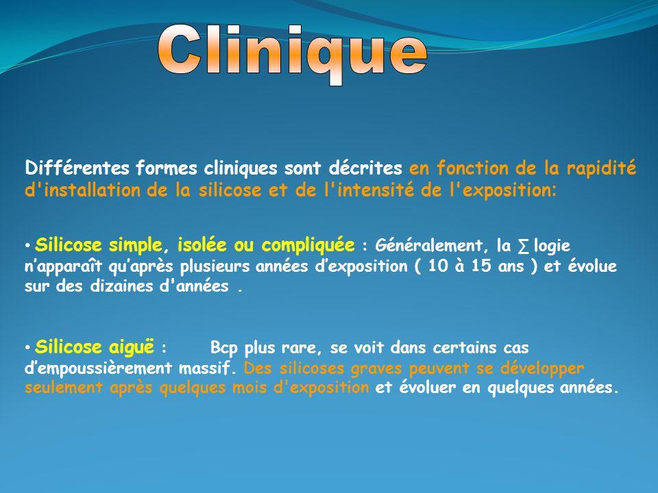 Clinique Différentes formes cliniques sont décrites en fonction de la rapidité d installation de la silicose et de l intensité de l exposition: