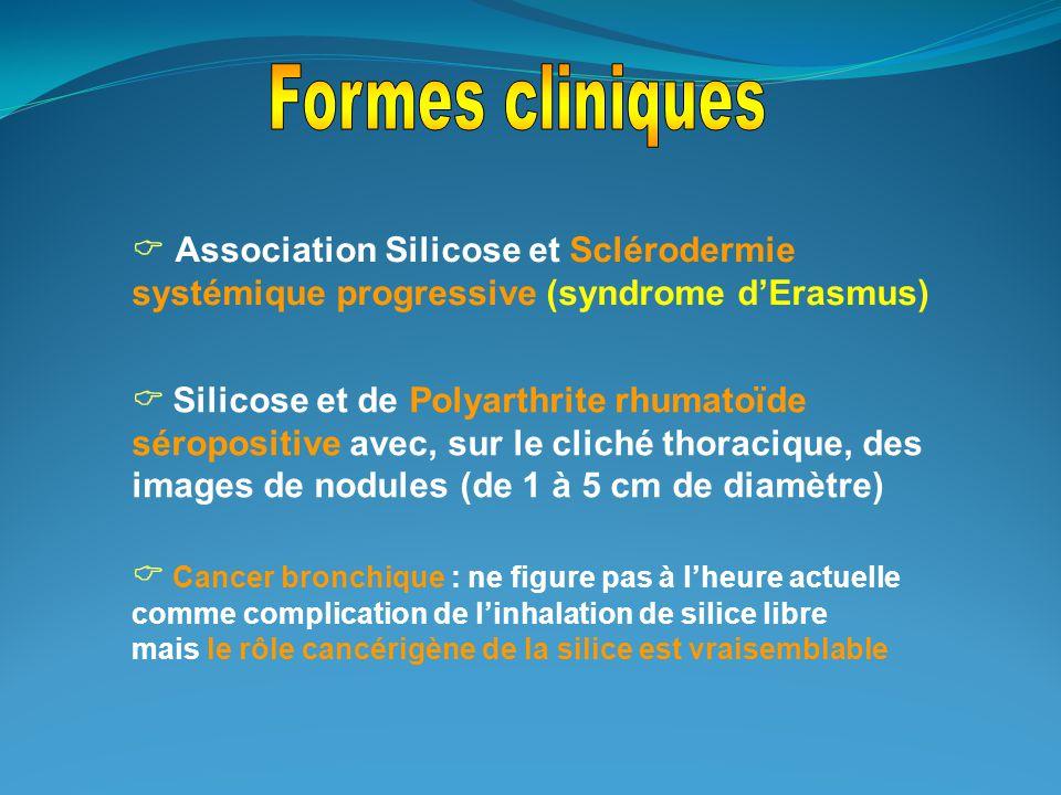 Formes cliniques  Association Silicose et Sclérodermie systémique progressive (syndrome d'Erasmus)