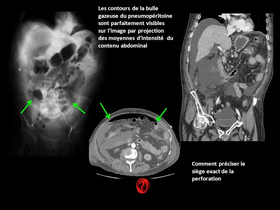 Les contours de la bulle gazeuse du pneumopéritoine sont parfaitement visibles sur l image par projection des moyennes d intensité du contenu abdominal