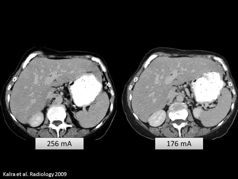 256 mA 176 mA Kalra et al. Radiology 2009