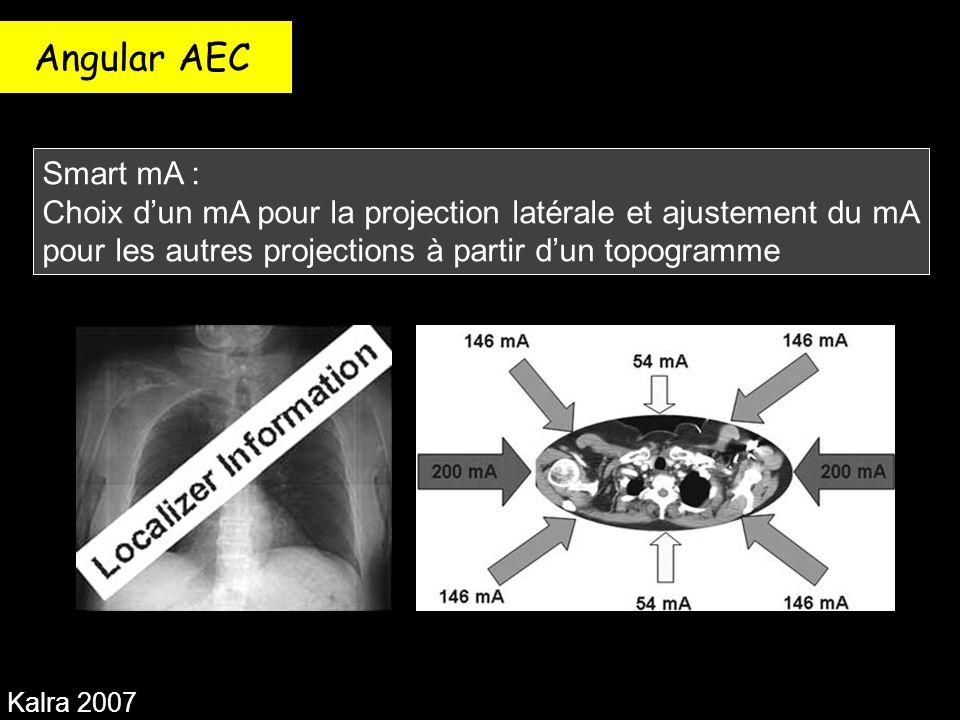 Angular AEC Smart mA : Choix d'un mA pour la projection latérale et ajustement du mA pour les autres projections à partir d'un topogramme.