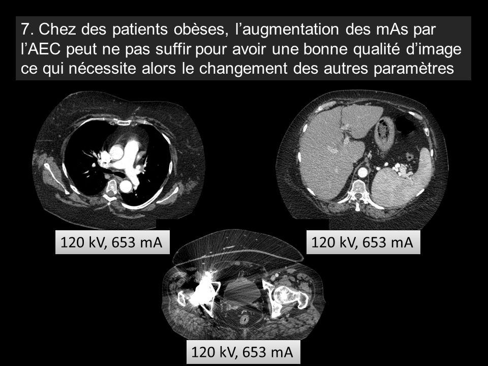7. Chez des patients obèses, l'augmentation des mAs par l'AEC peut ne pas suffir pour avoir une bonne qualité d'image ce qui nécessite alors le changement des autres paramètres