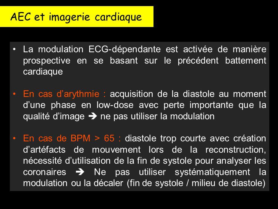 AEC et imagerie cardiaque