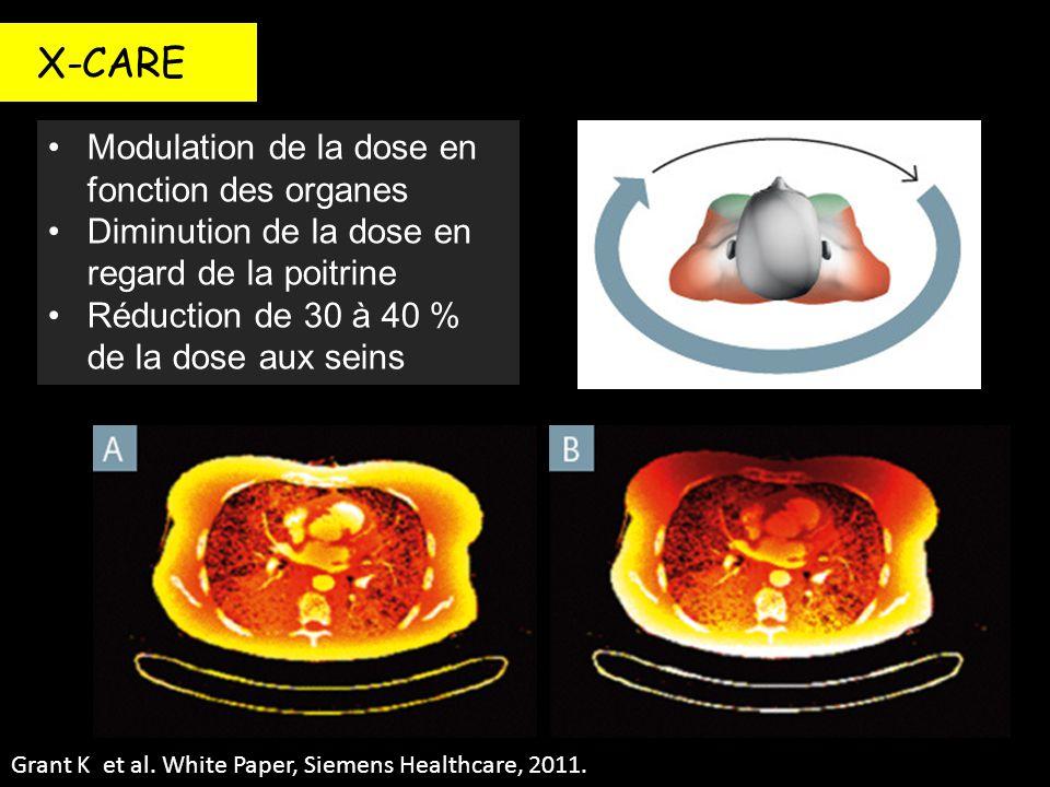 X-CARE Modulation de la dose en fonction des organes