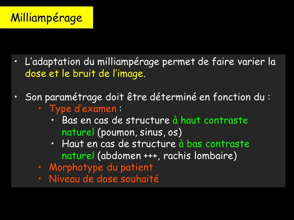 Milliampérage L'adaptation du milliampérage permet de faire varier la dose et le bruit de l'image.