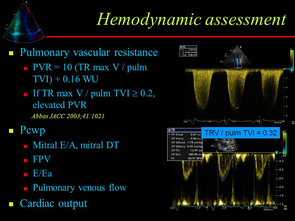 Hemodynamic assessment