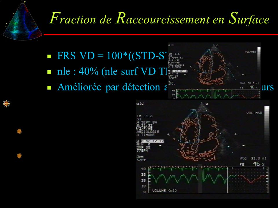 Fraction de Raccourcissement en Surface