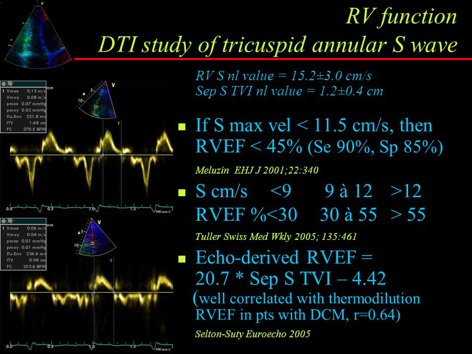 RV function DTI study of tricuspid annular S wave