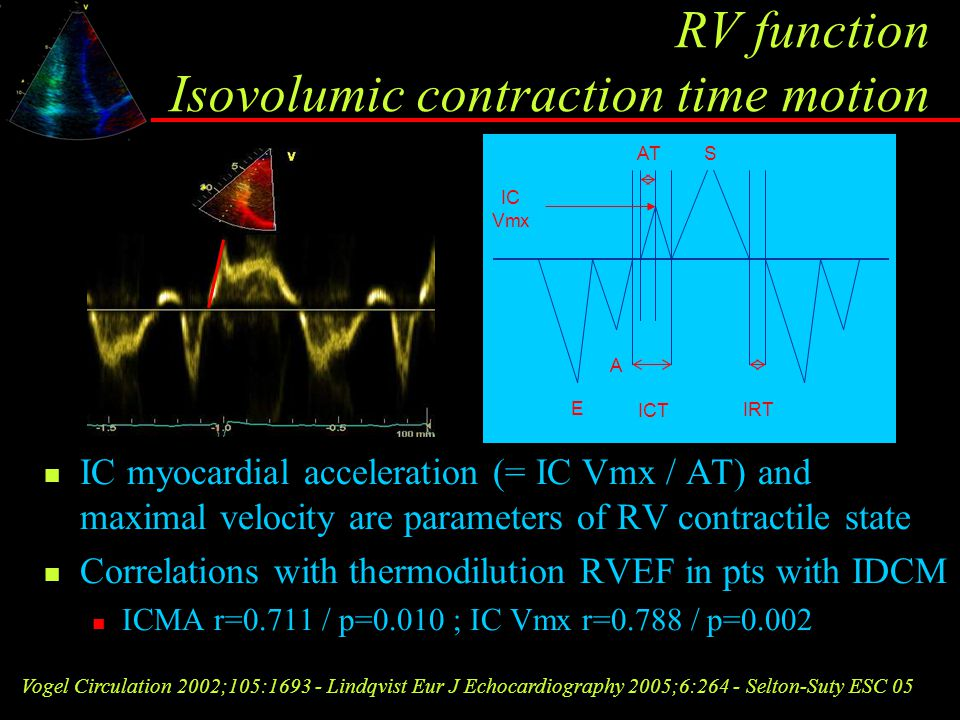 RV function Isovolumic contraction time motion