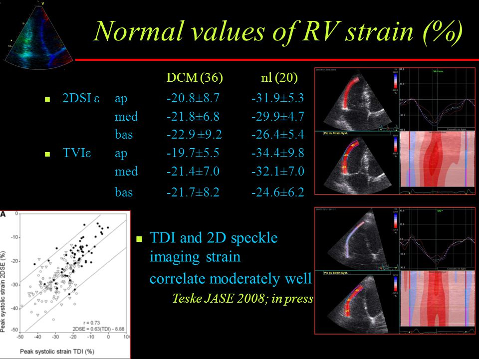 Normal values of RV strain (%)