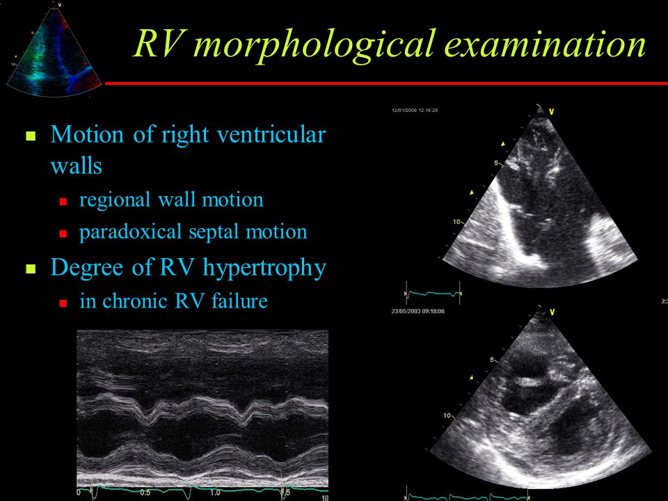 RV morphological examination