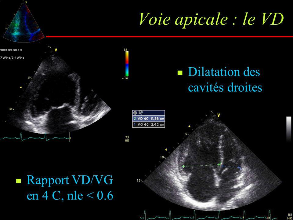 Voie apicale : le VD Dilatation des cavités droites