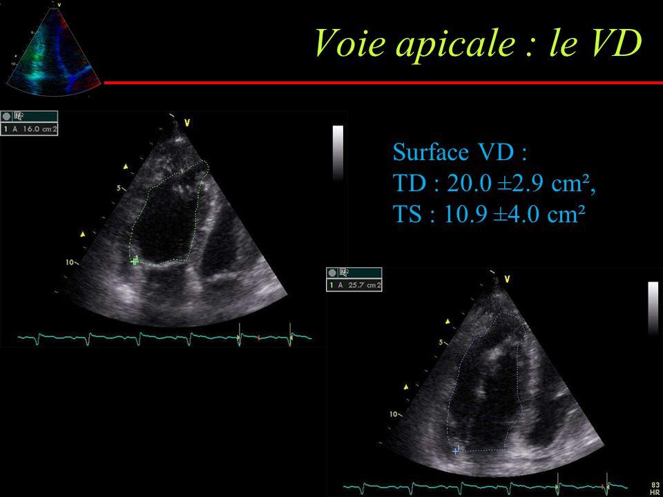 Voie apicale : le VD Surface VD : TD : 20.0 ±2.9 cm², TS : 10.9 ±4.0 cm²