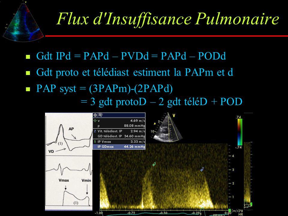 Flux d Insuffisance Pulmonaire