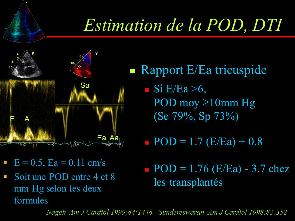 Estimation de la POD, DTI