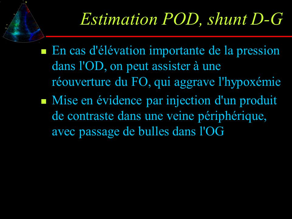 Estimation POD, shunt D-G