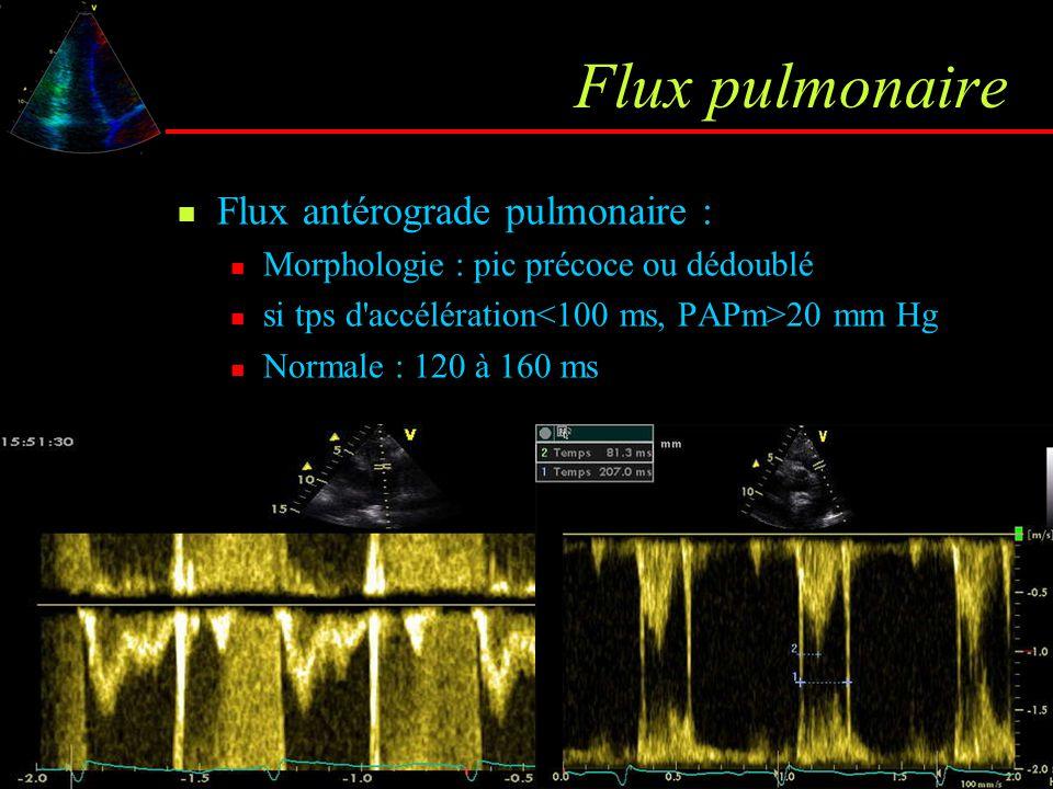 Flux pulmonaire Flux antérograde pulmonaire :