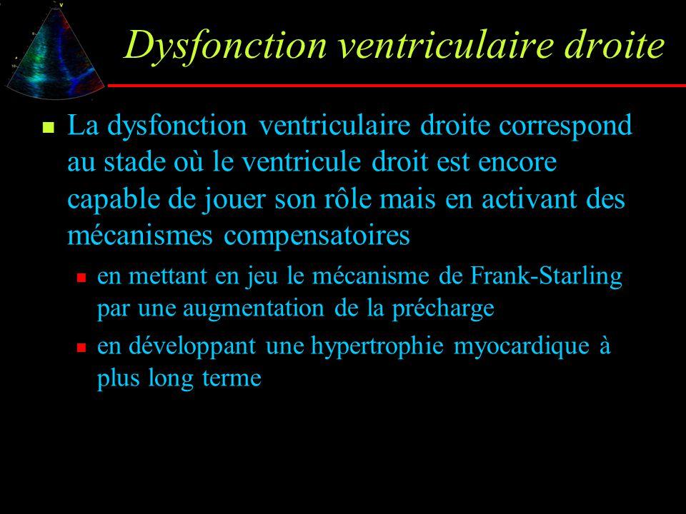 Dysfonction ventriculaire droite