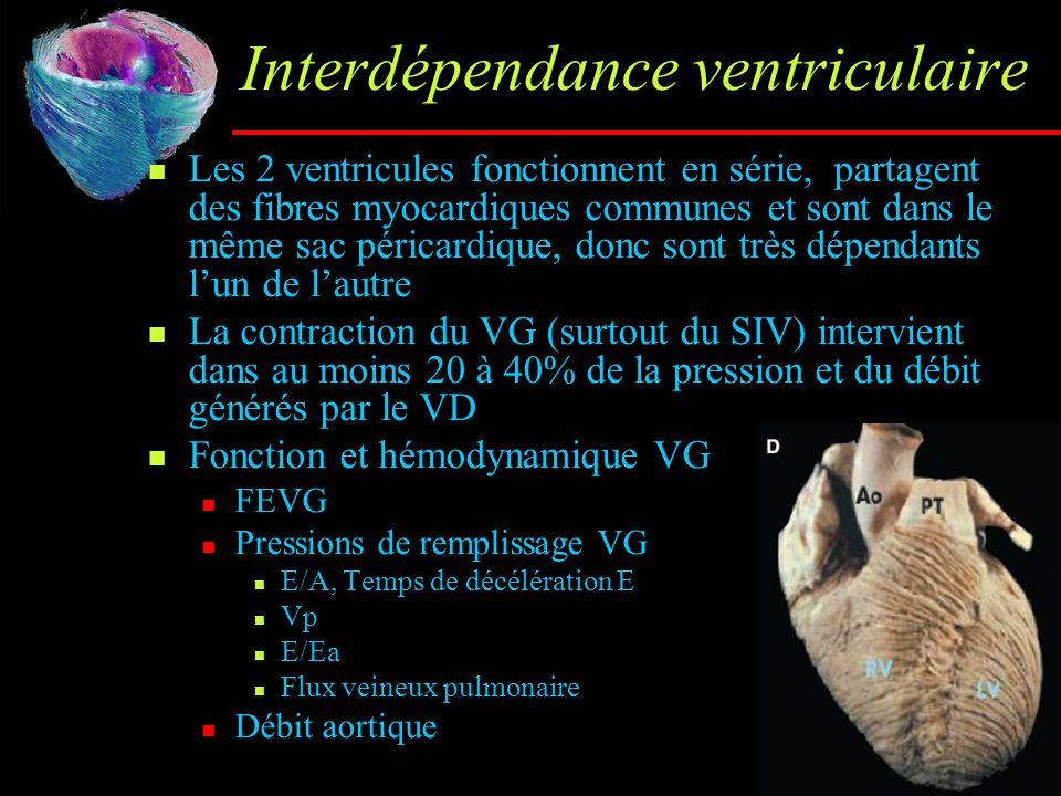 Interdépendance ventriculaire