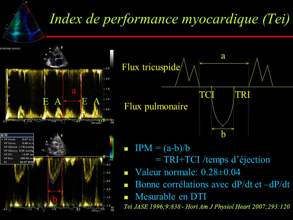 Index de performance myocardique (Tei)