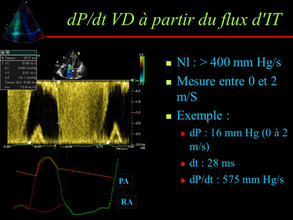 dP/dt VD à partir du flux d IT