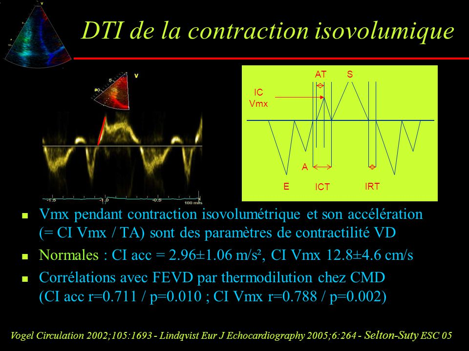 DTI de la contraction isovolumique