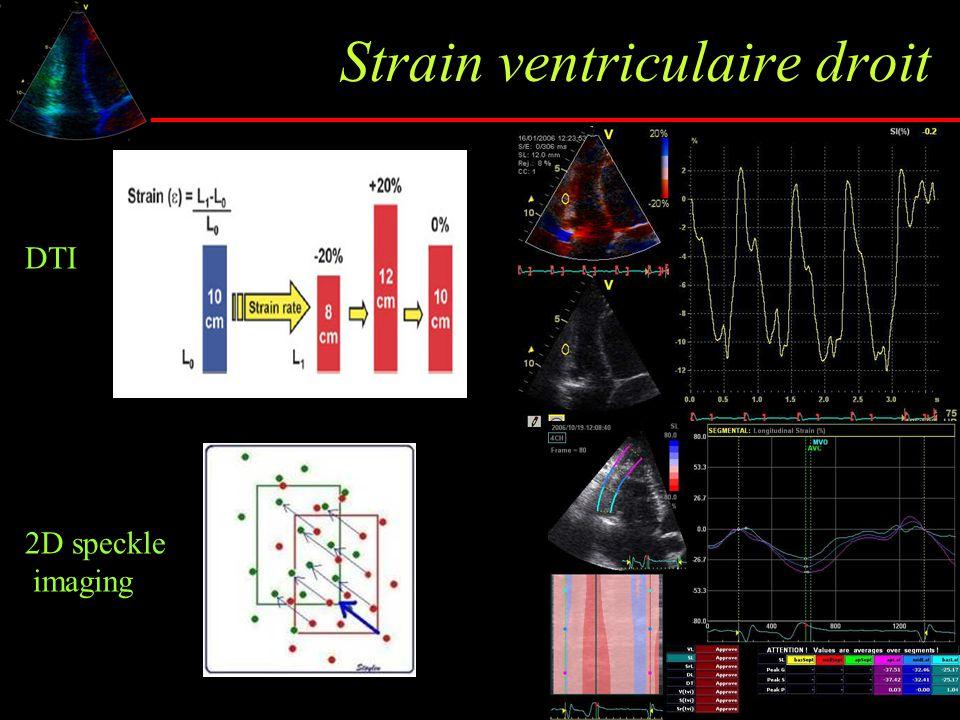 Strain ventriculaire droit