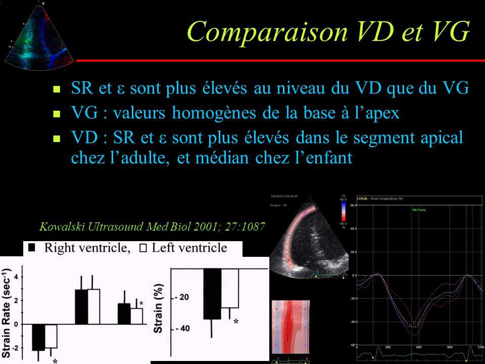 Comparaison VD et VG SR et  sont plus élevés au niveau du VD que du VG. VG : valeurs homogènes de la base à l'apex.