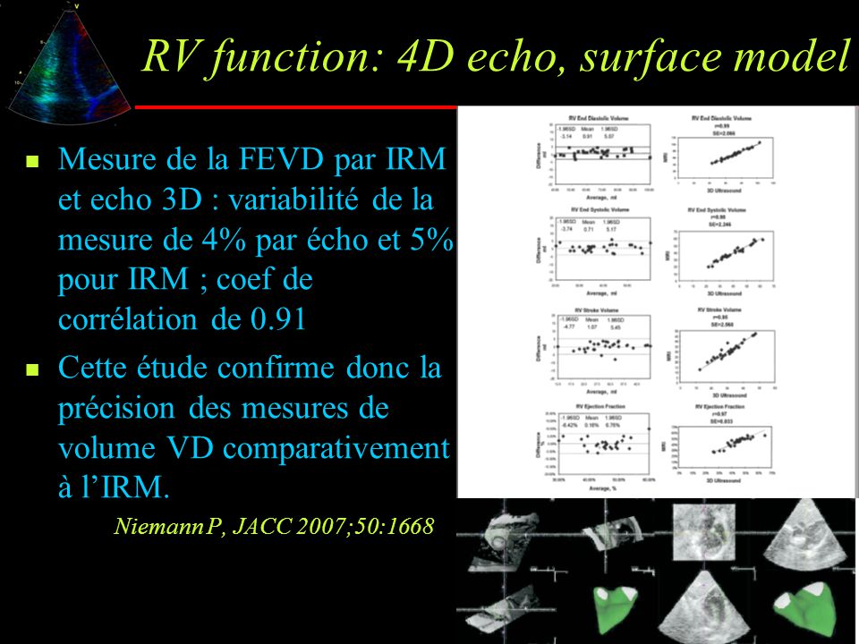 RV function: 4D echo, surface model