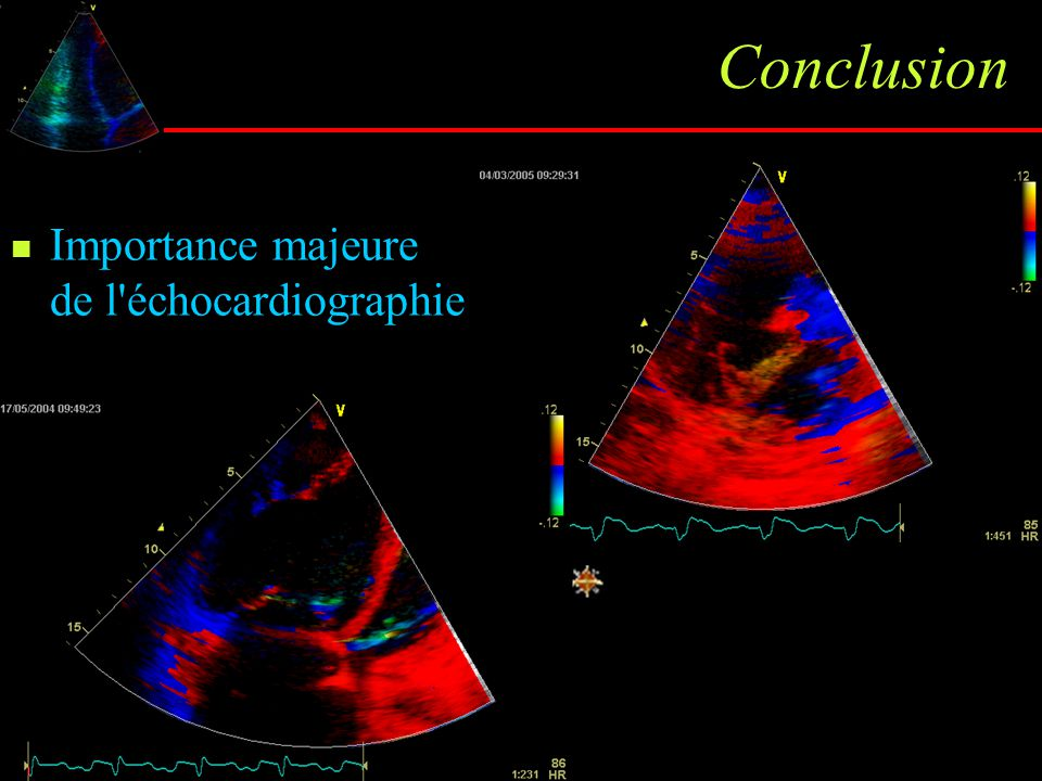 Conclusion Importance majeure de l échocardiographie