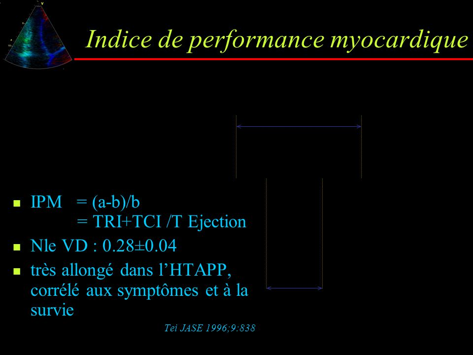 Indice de performance myocardique