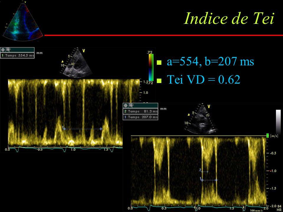 Indice de Tei a=554, b=207 ms Tei VD = 0.62 Nle : 0.28 ± 0.04